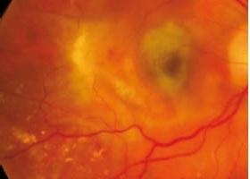 Keeler Vantage Plus LED Digital Binocular Indirect Ophthalmoscope